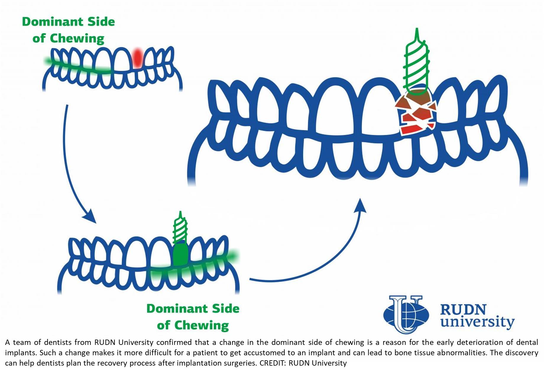 Chewing habits determine early deterioration of dental implants