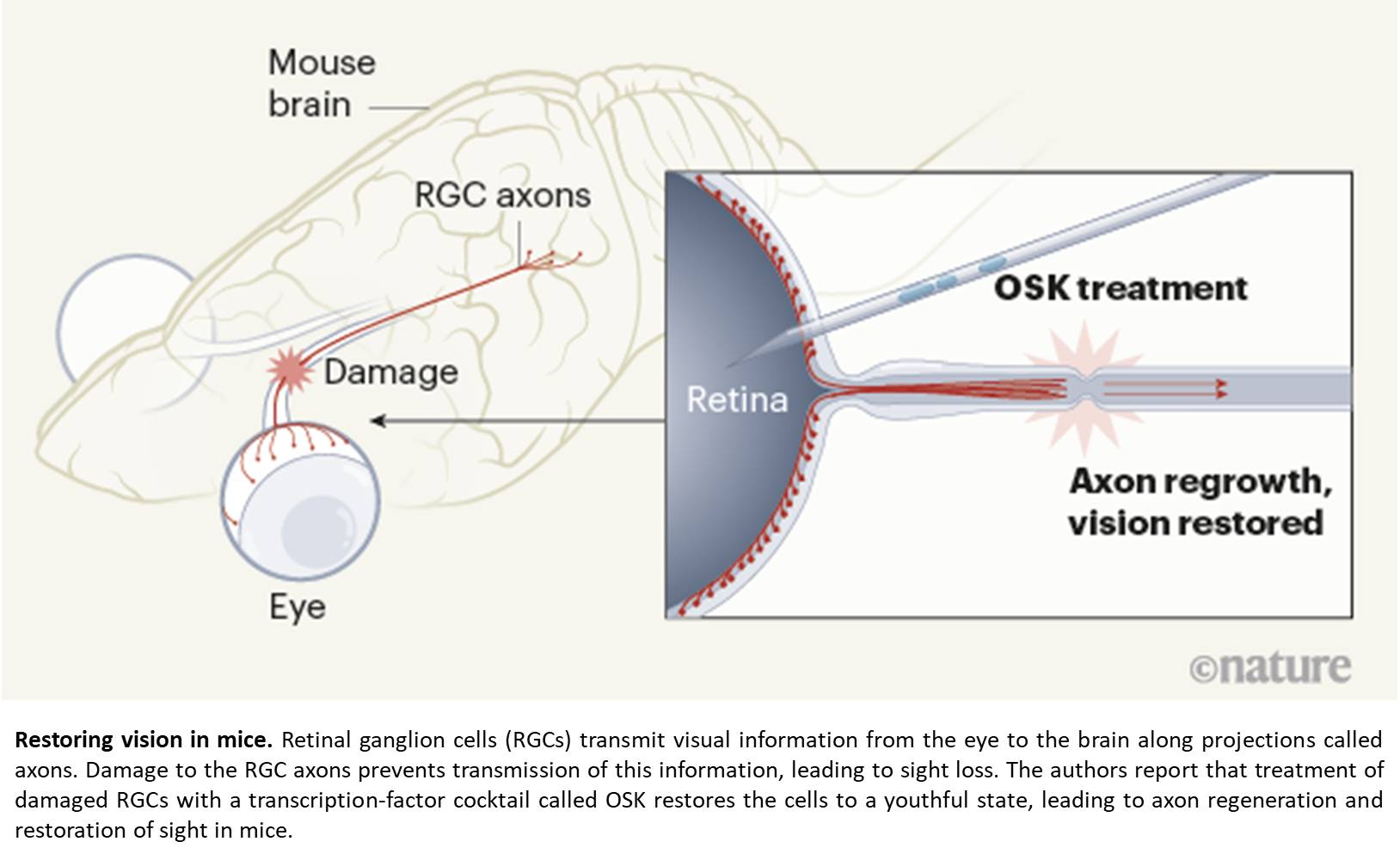 Restoring vision by turning back epigenetic information in glaucoma and aging mice