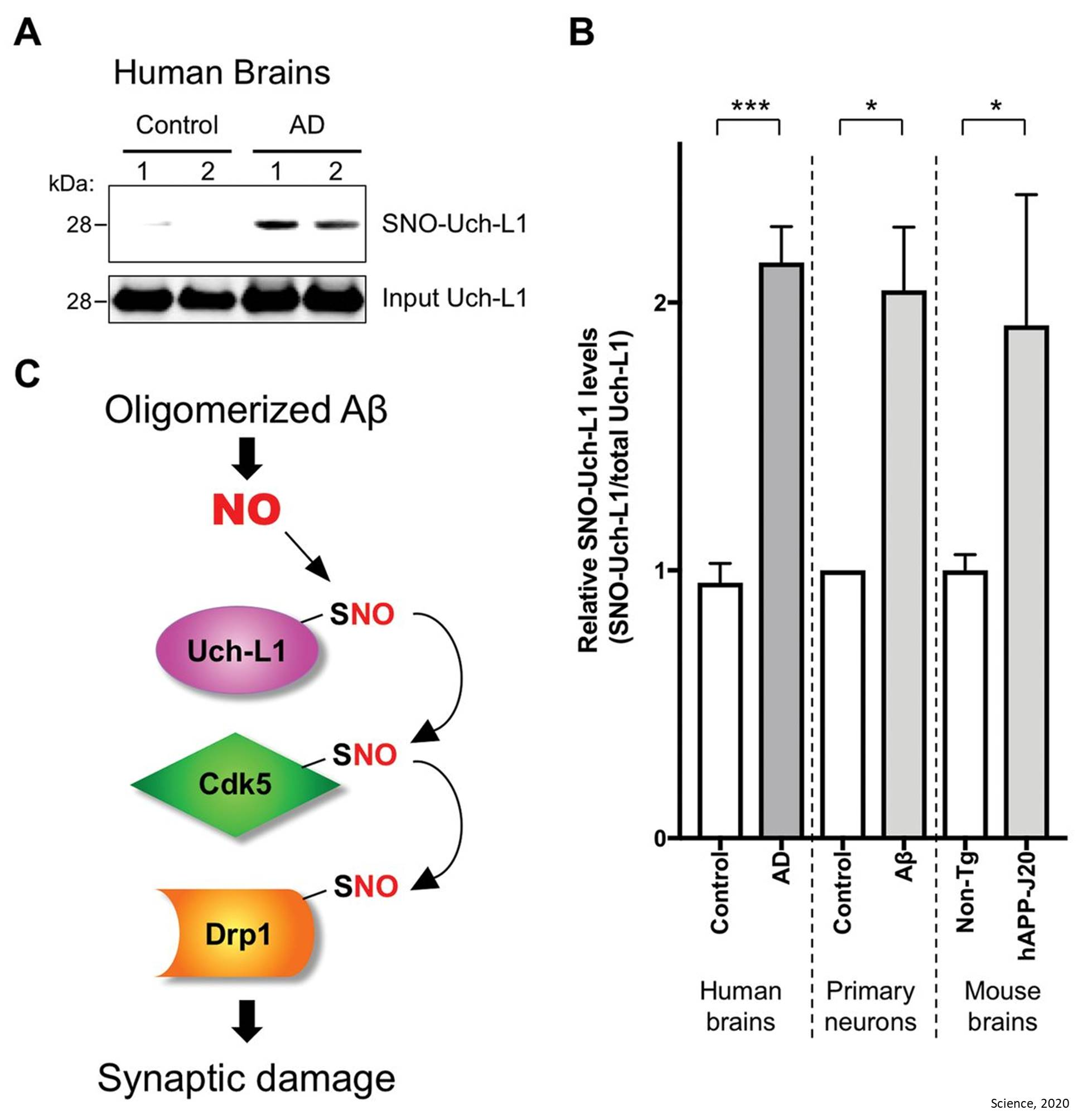 Noncanonical transnitrosylation network contributes to synapse loss in Alzheimer's disease
