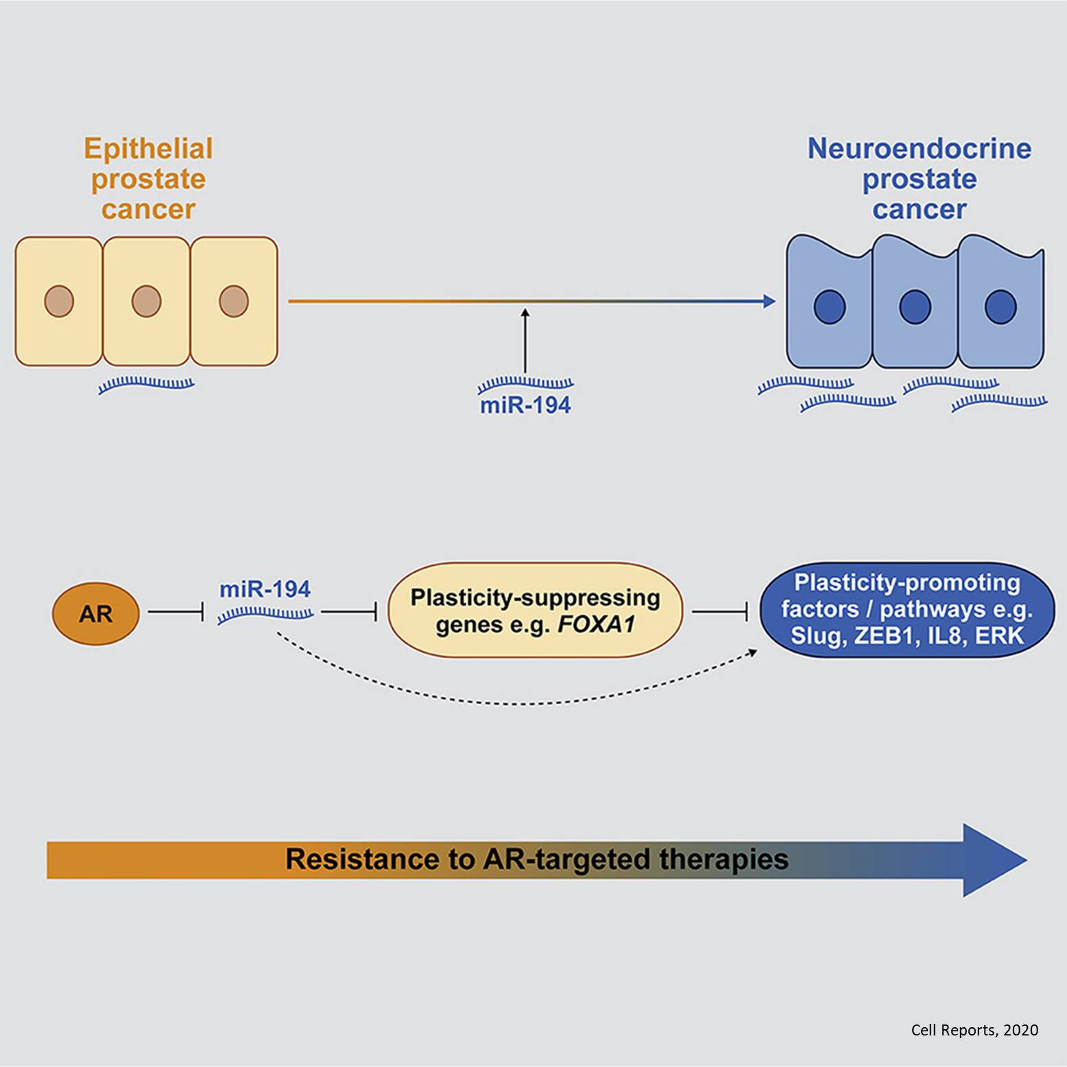 A MicroRNA Promotes Neuroendocrine Transdifferentiation in Prostate Cancer