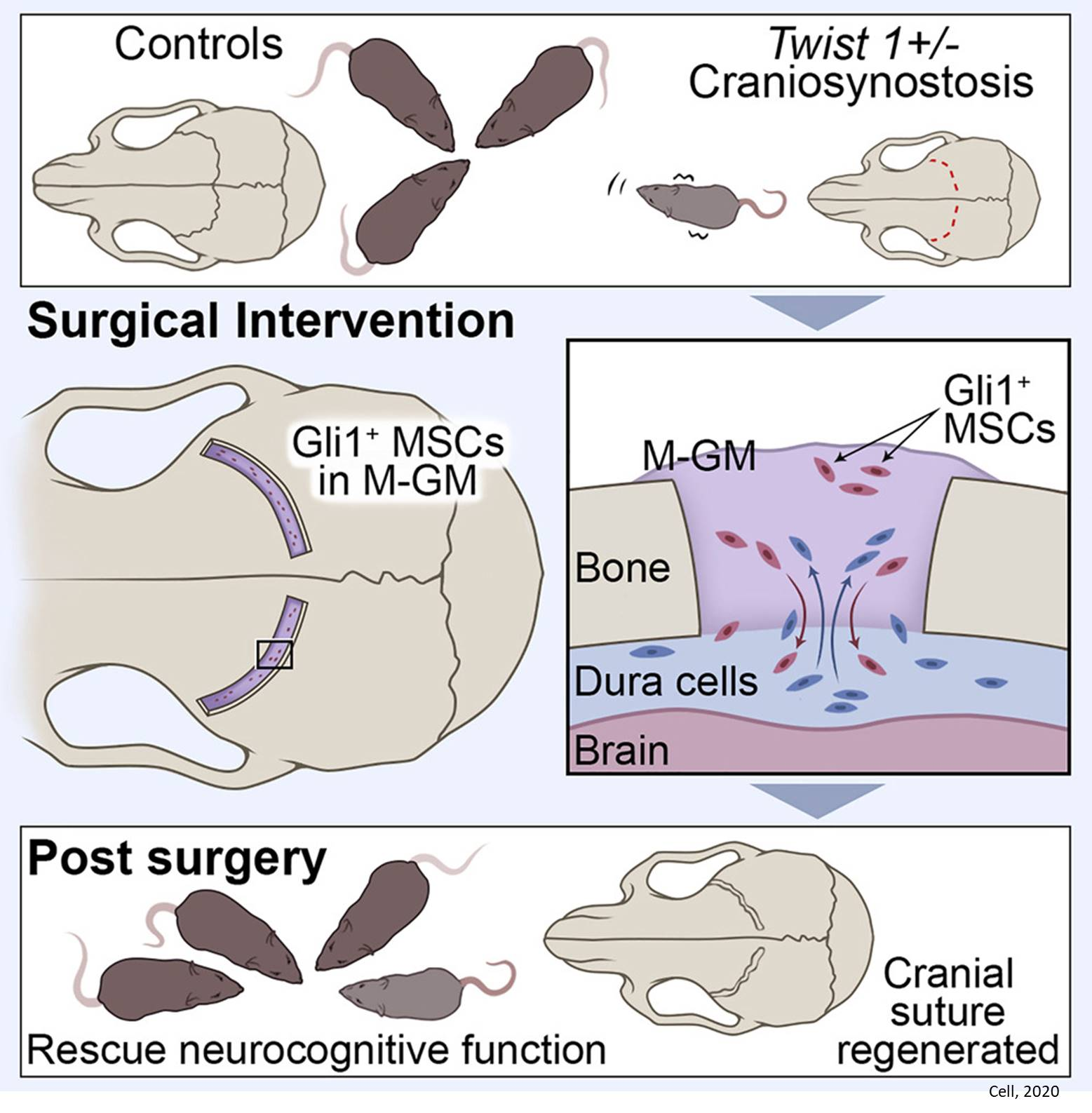 Cranial suture regeneration and neurocognitive defect mitigation by stem cell therapy