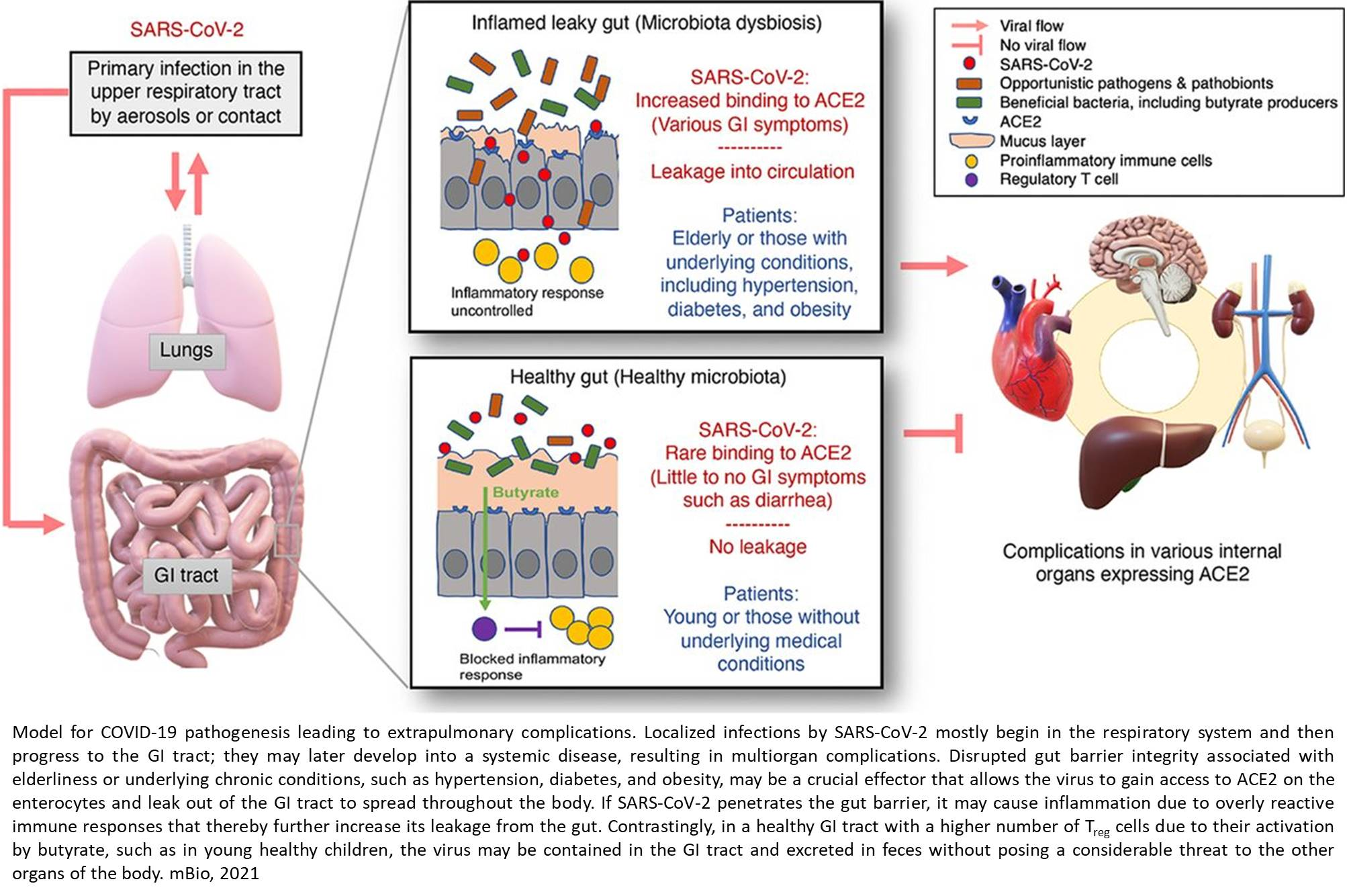 Do an Altered Gut Microbiota and an Associated Leaky Gut Affect COVID-19 Severity?