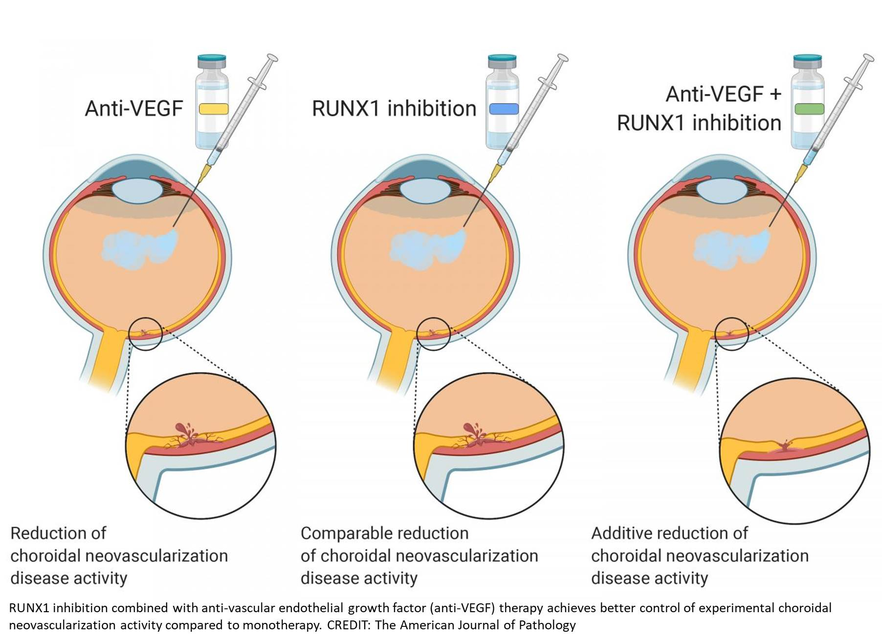 Treating age-related macular degeneration effectively!