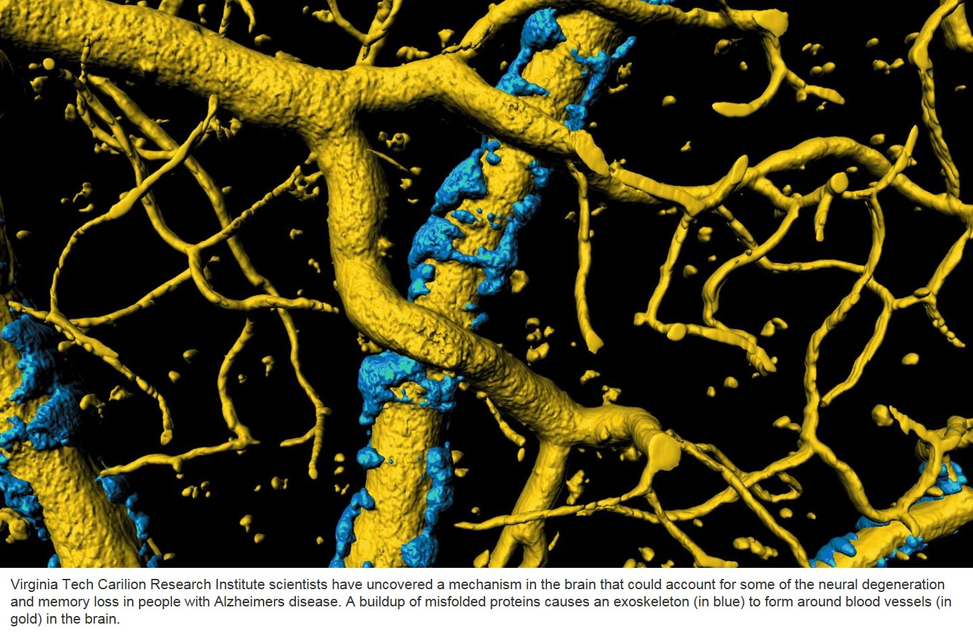 Insight into cause of Alzheimer's symptoms