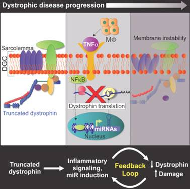 Inflammation and microRNA connection to muscular dystrophy