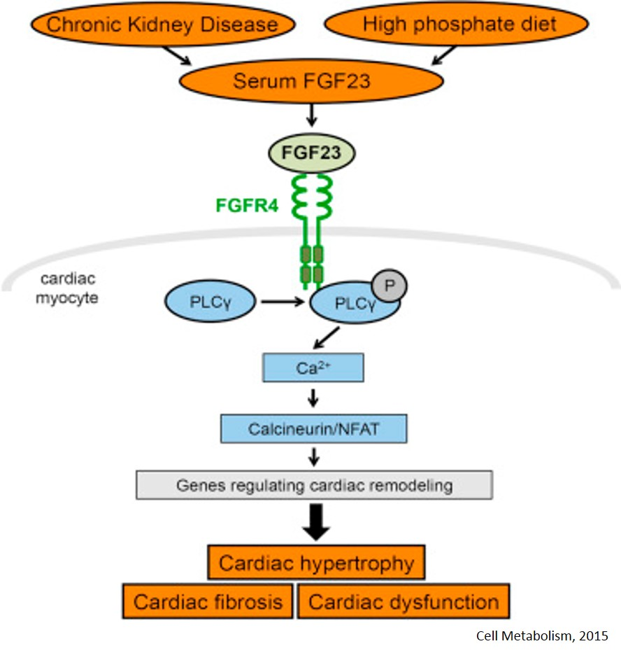 Cause for Left Ventricular Hypertrophy in Chronic Kidney Disease Identified!