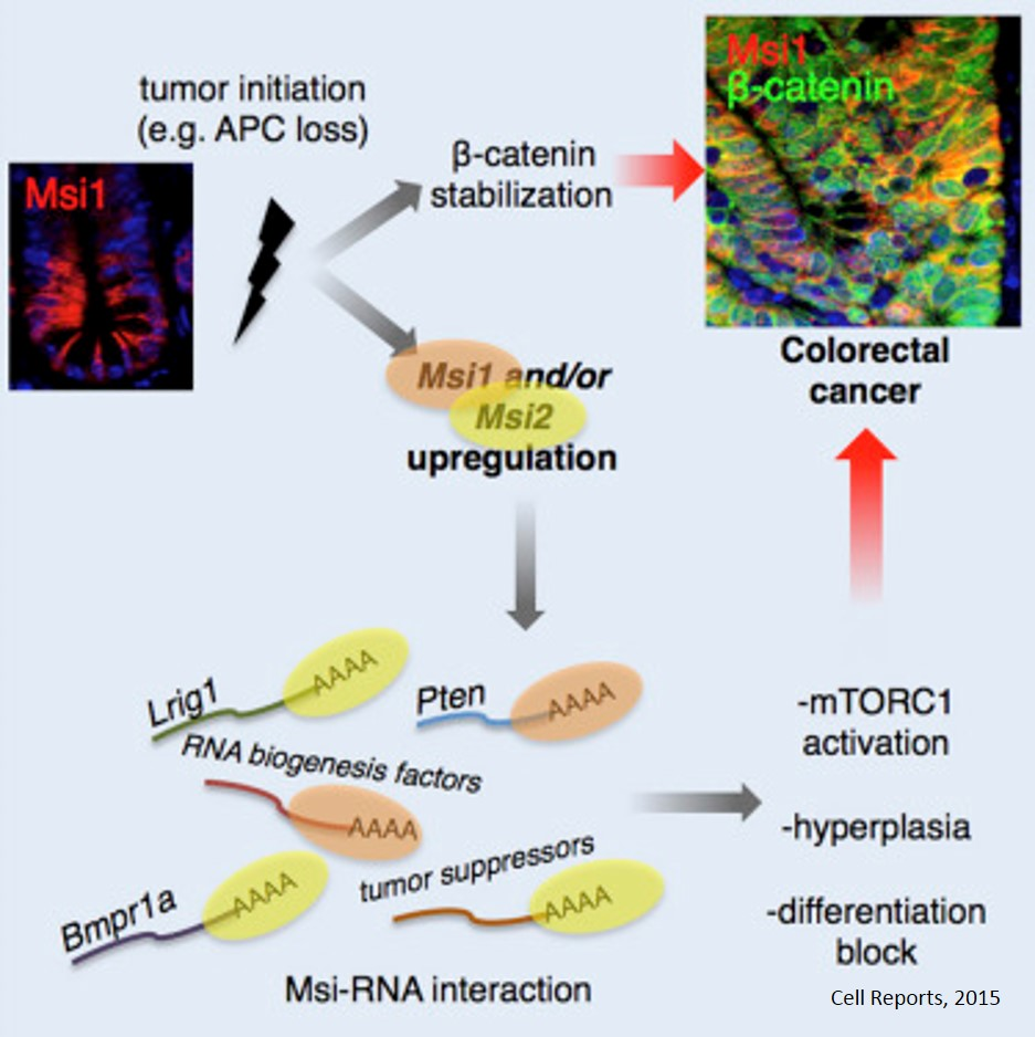Gene pair plays crucial role in colon cancer