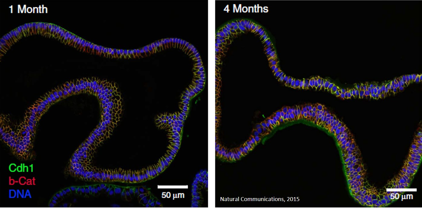Signaling mechanism regulating stemness and differentiation of human fallopian tube organoids