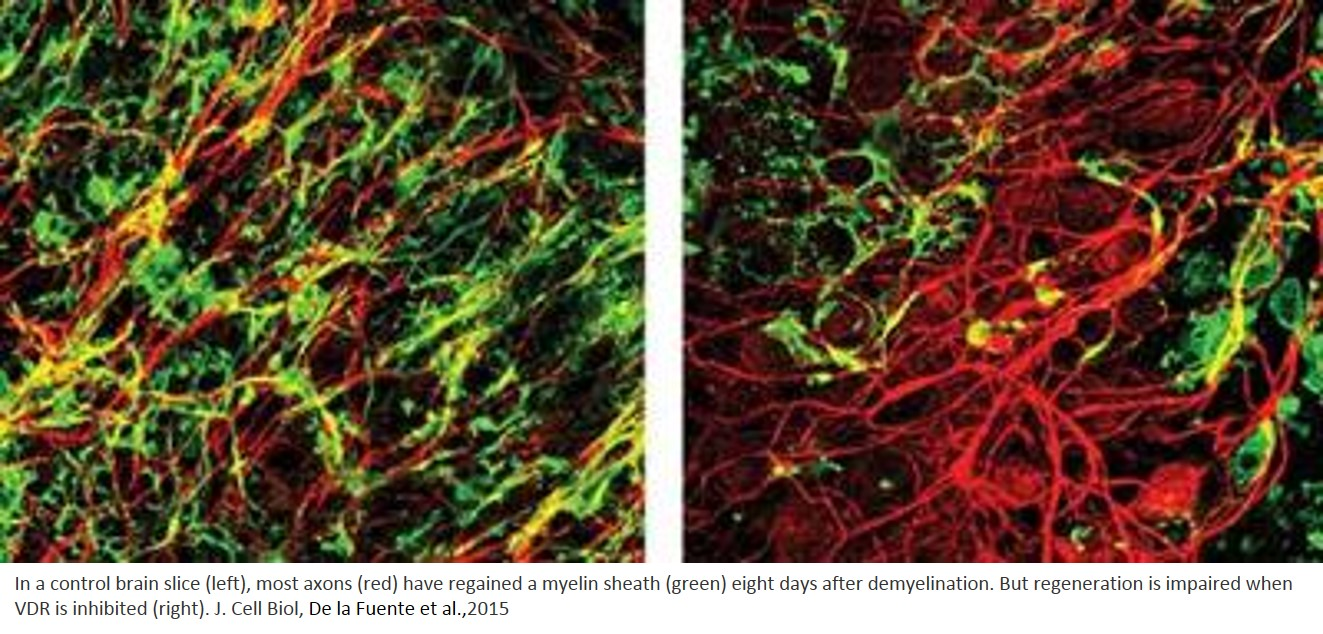 Vitamin D and its receptor supports myelin regeneration