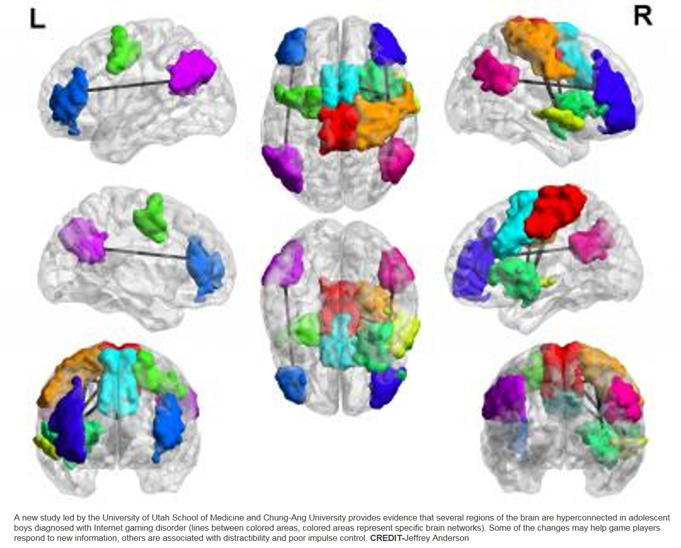 Brain differences in compulsive video game players