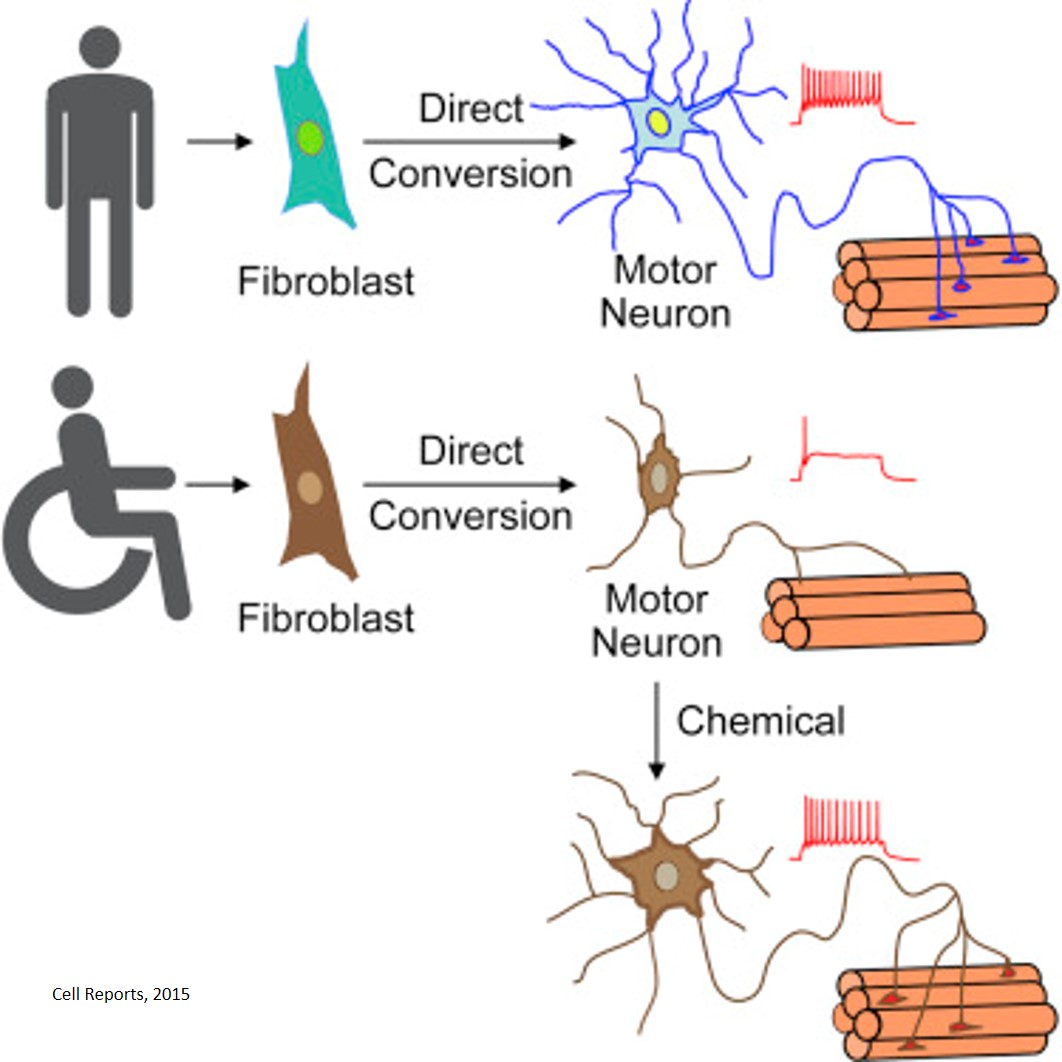 rescue of degenerative neurons from als patients using a