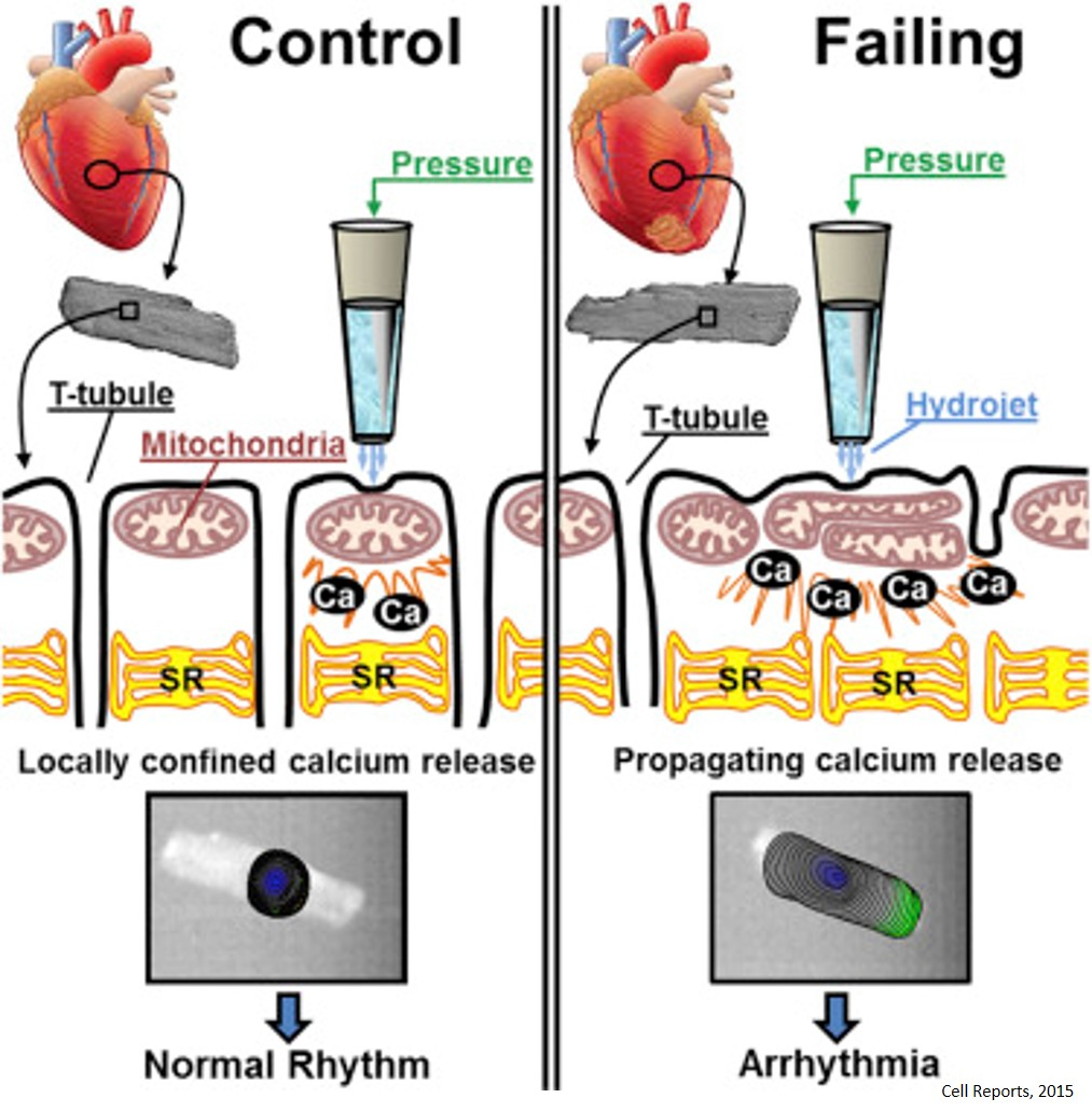 Mechanism of abnormal calcium release in failing heart