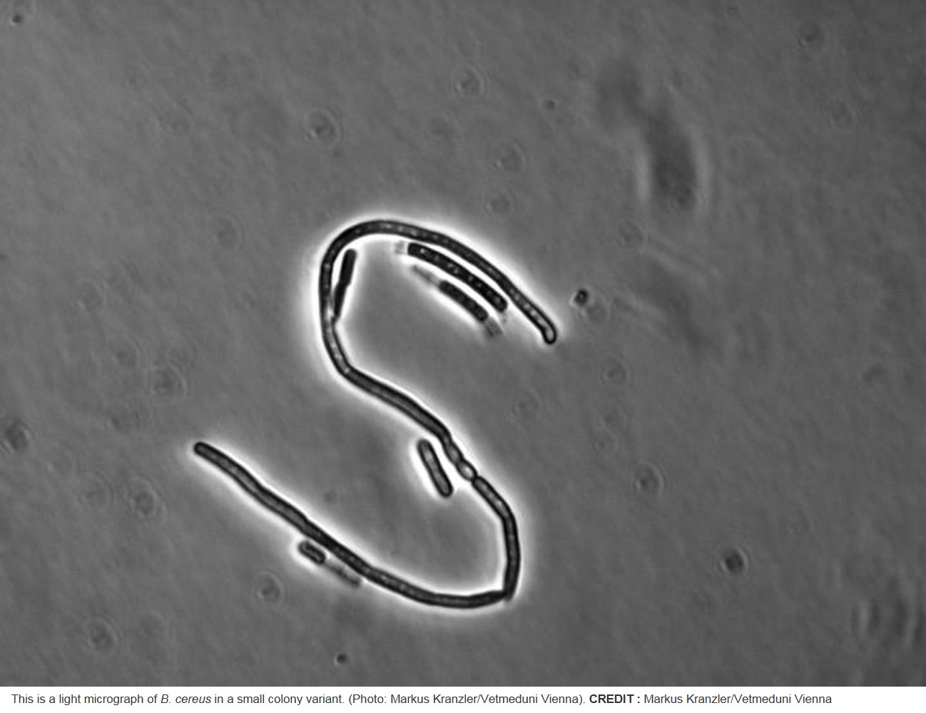 Resistance to antibiotic by Bacillus cereus