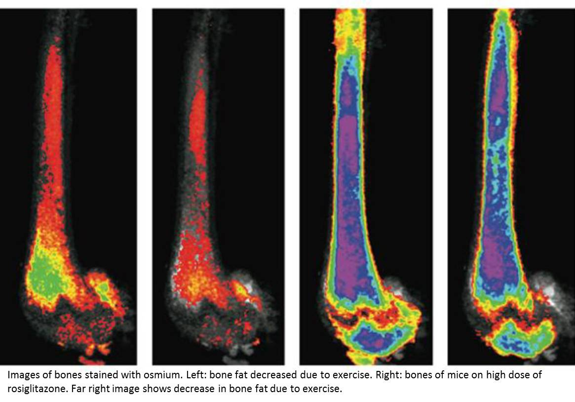 Diabetes drug boosts bone fat and fracture risk; exercise can partially offset the effect