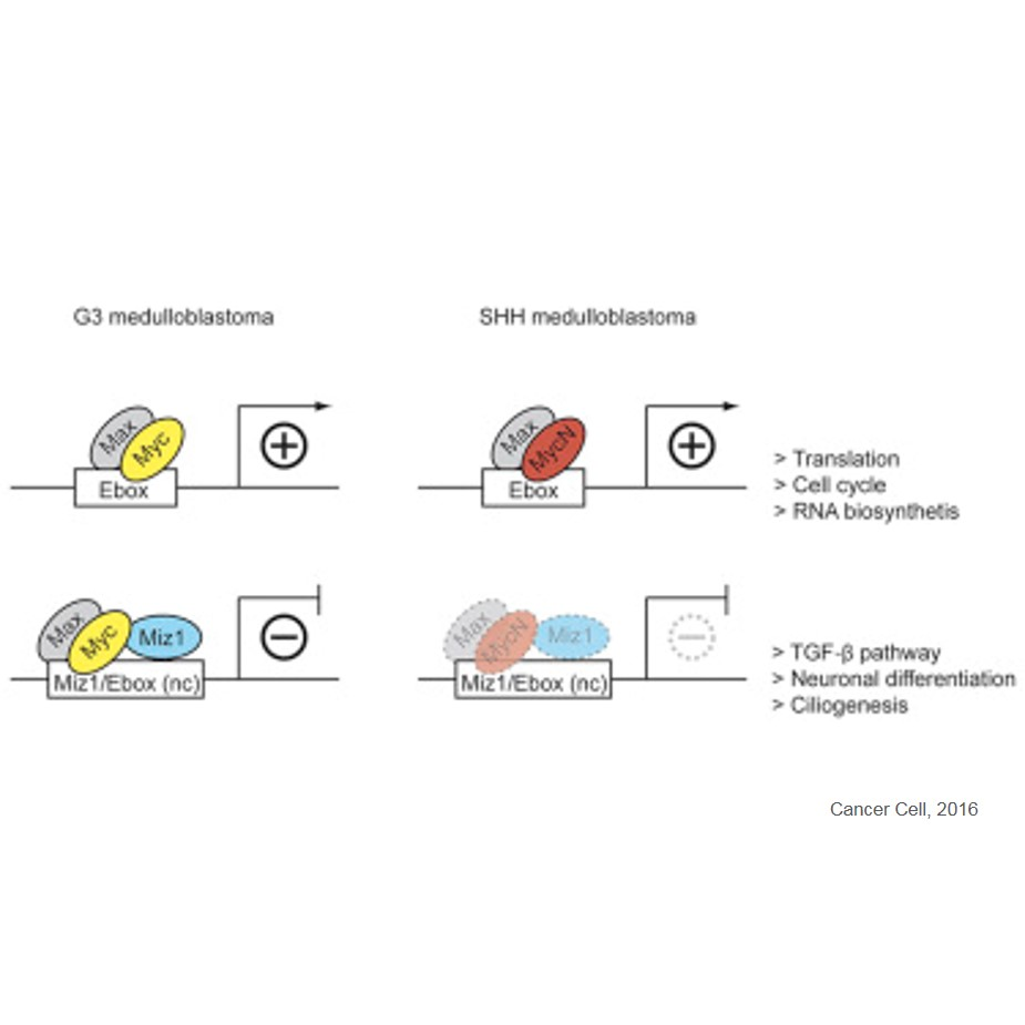 Protein interaction that defines an aggressive brain tumor subtype