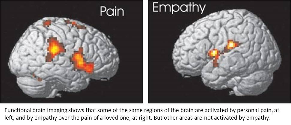 Reducing our own pain is also reducing empathy for pain in others