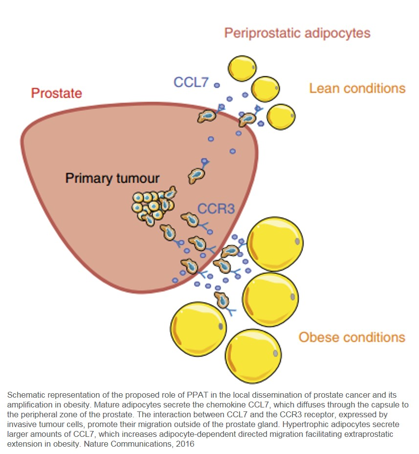 Periprostatic adipocytes act as a driving force for prostate cancer progression in obesity