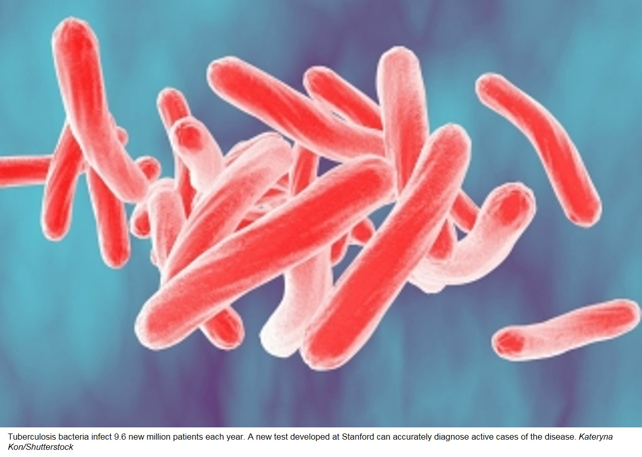 Blood test could transform tuberculosis diagnosis