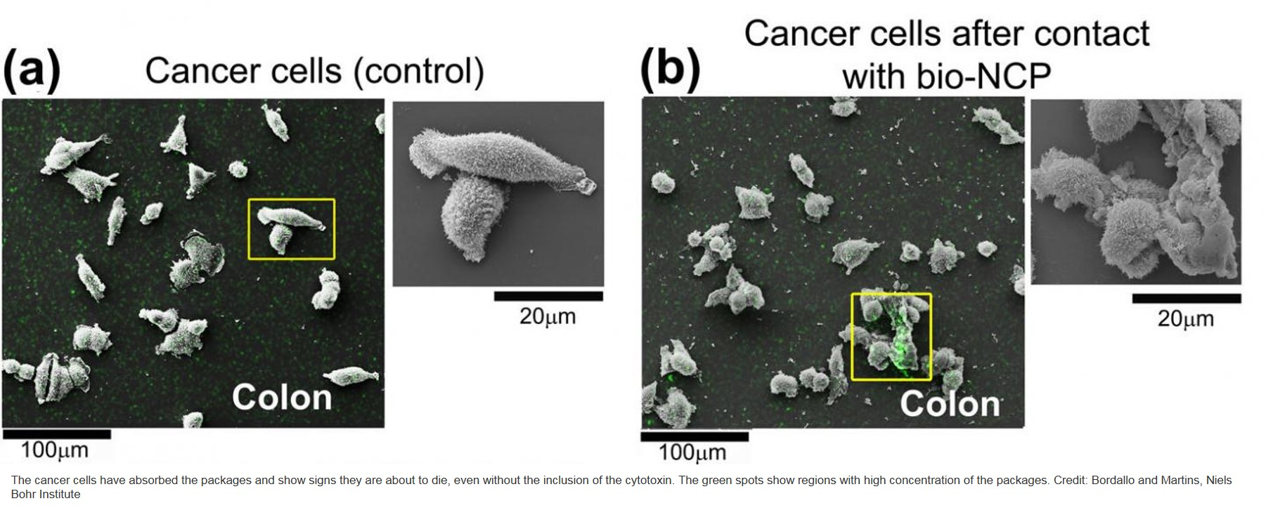 Cancer treatment at cellular level