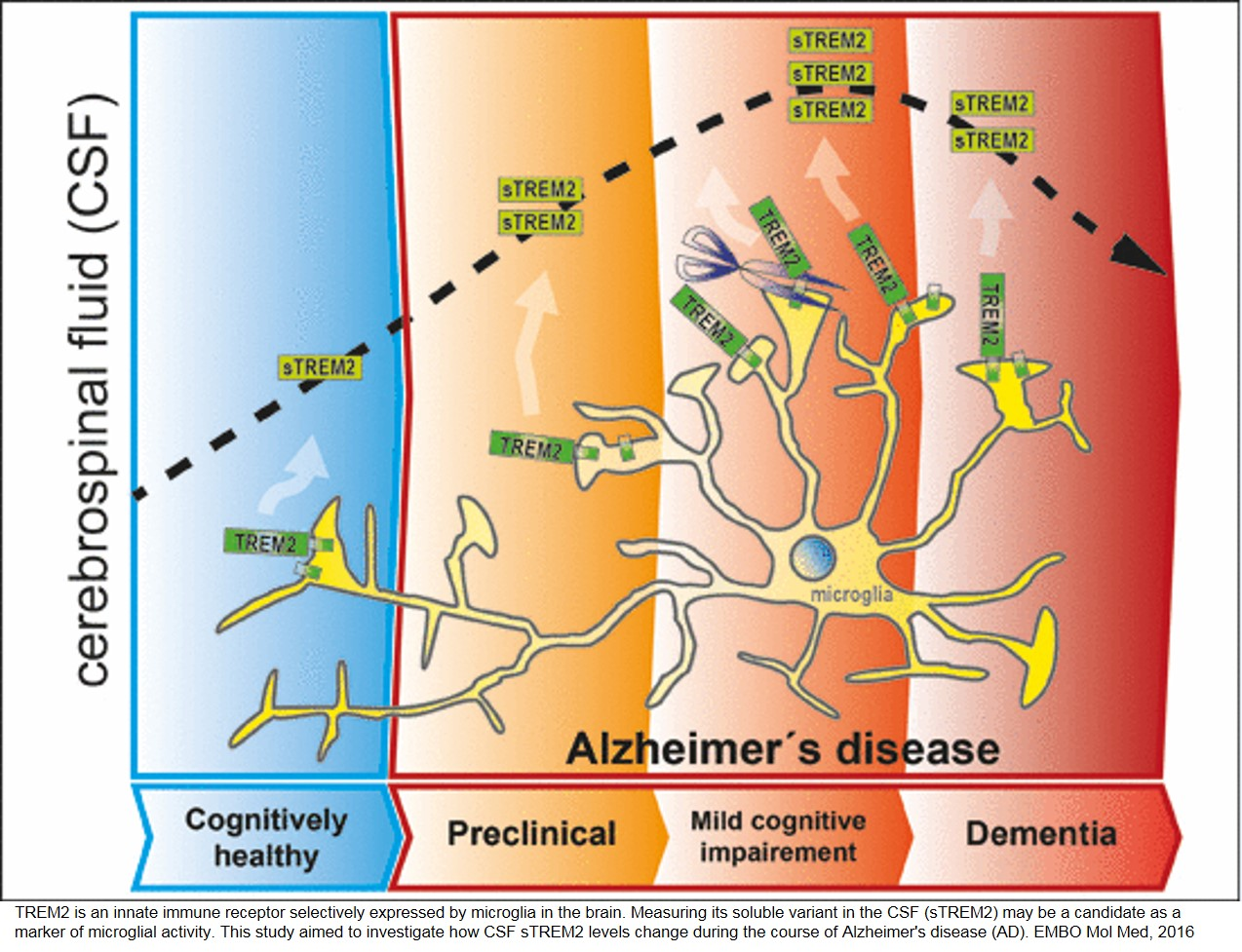 alzheimer's disease early biomarker defined – science mission