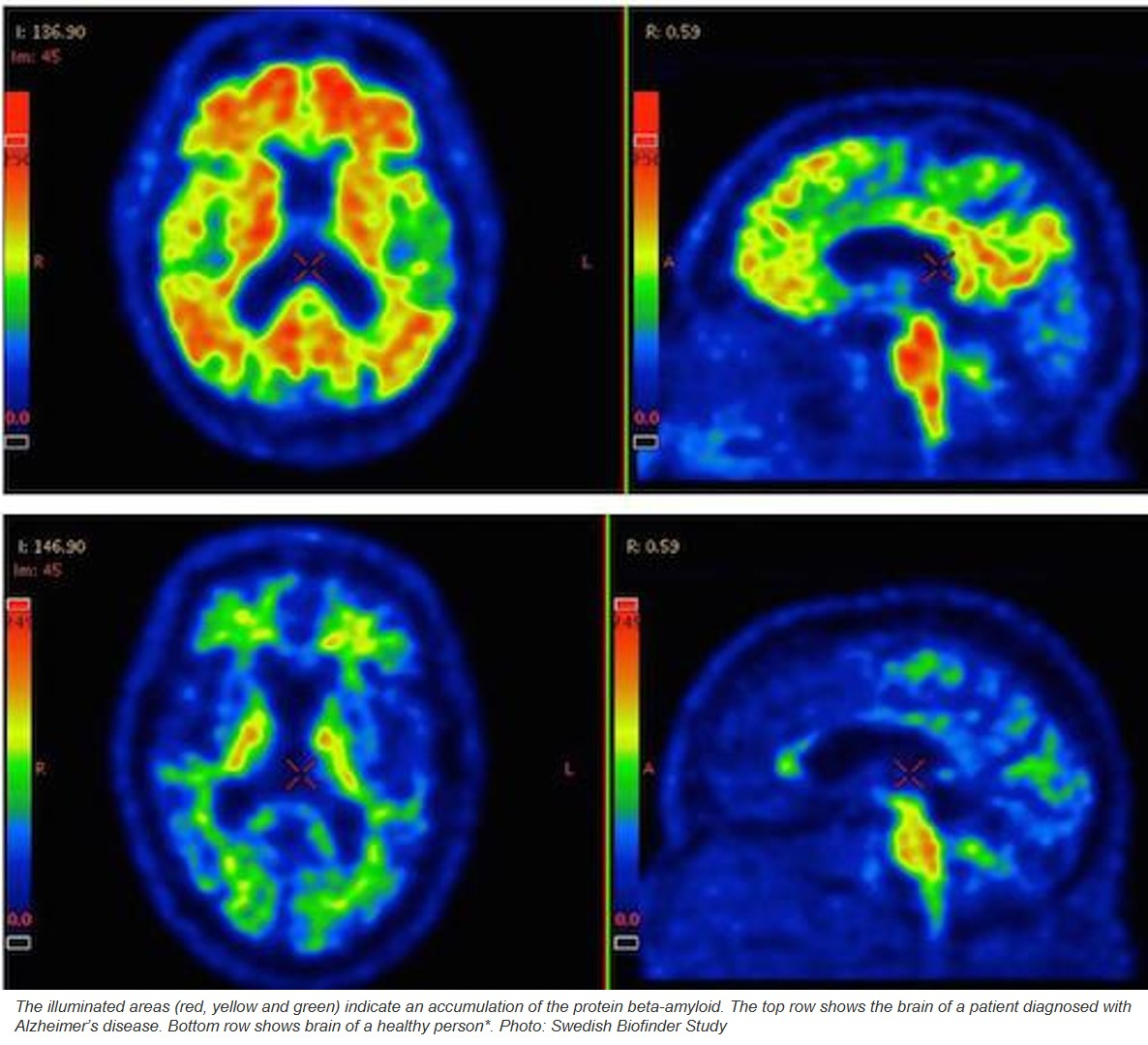 Alzheimer's more versatile than previously known