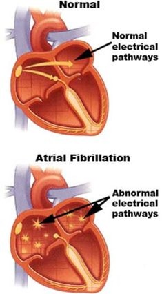 Yoga improves quality of life in patients with atrial fibrillation