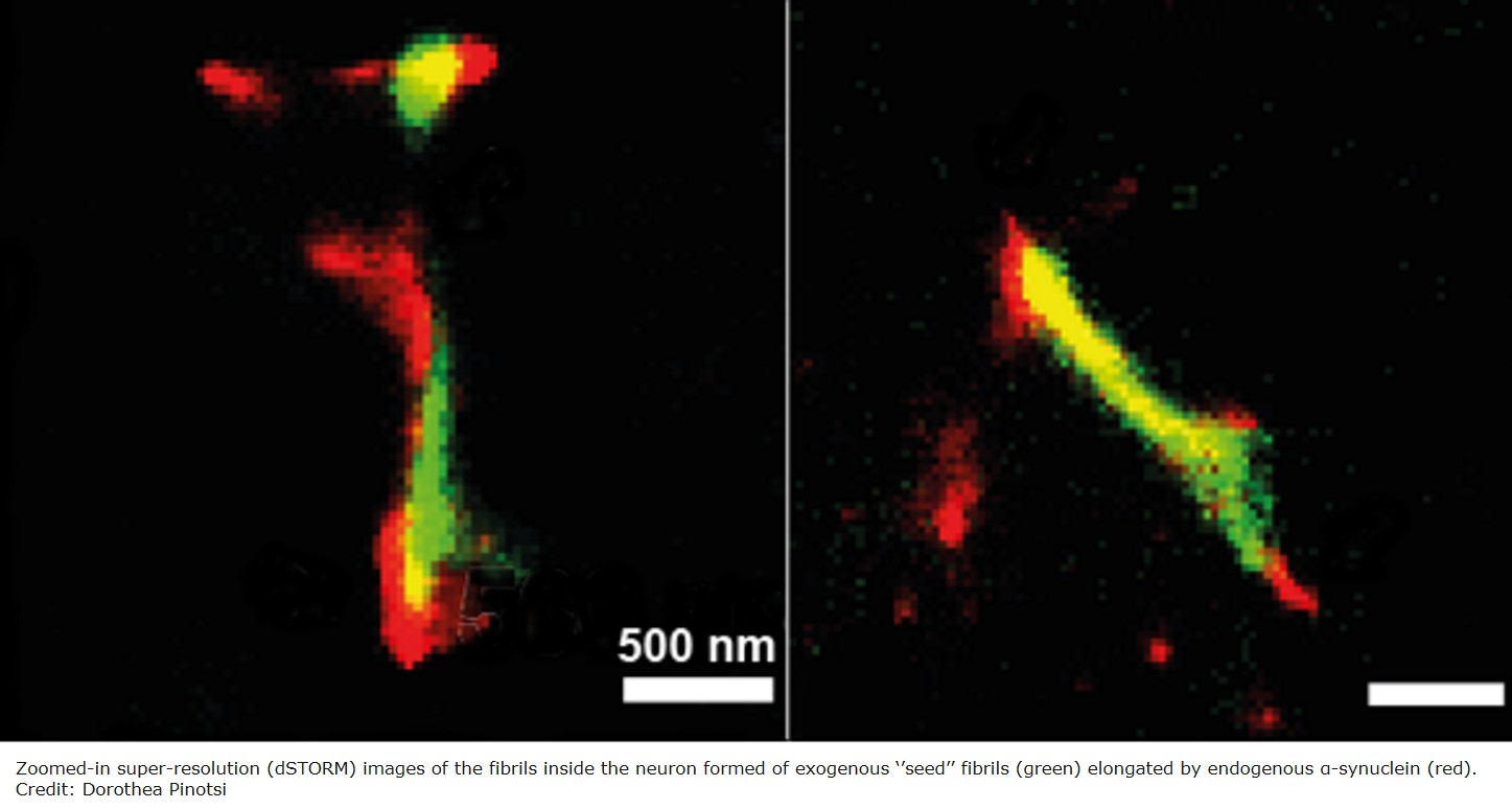 When Parkinson's proteins become toxic to brain cells