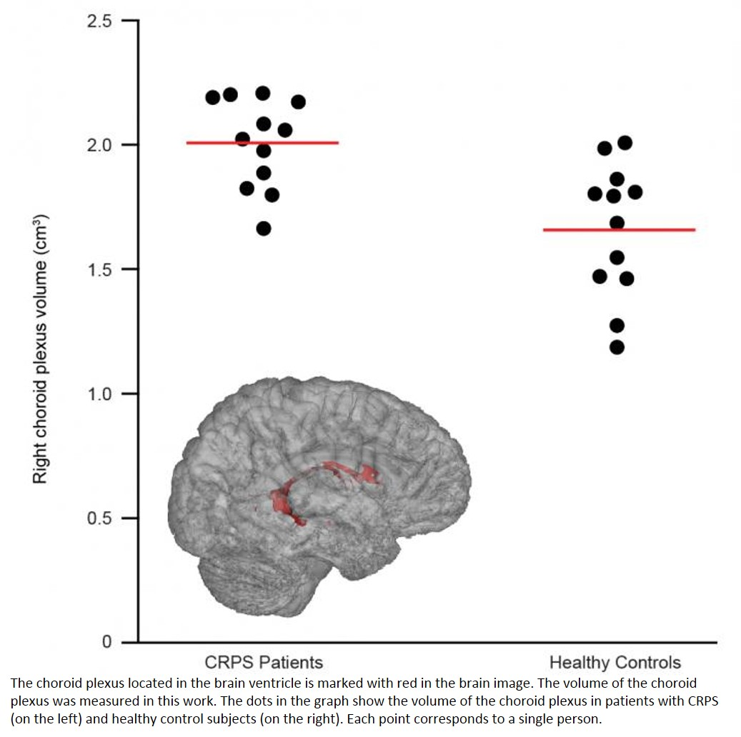 Unexpected link between choroid plexus and chronic pain