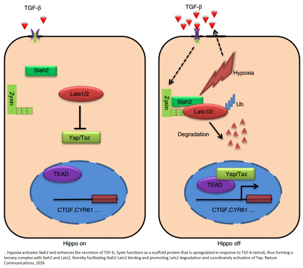 Mechanism of tumor progression in hypoxia