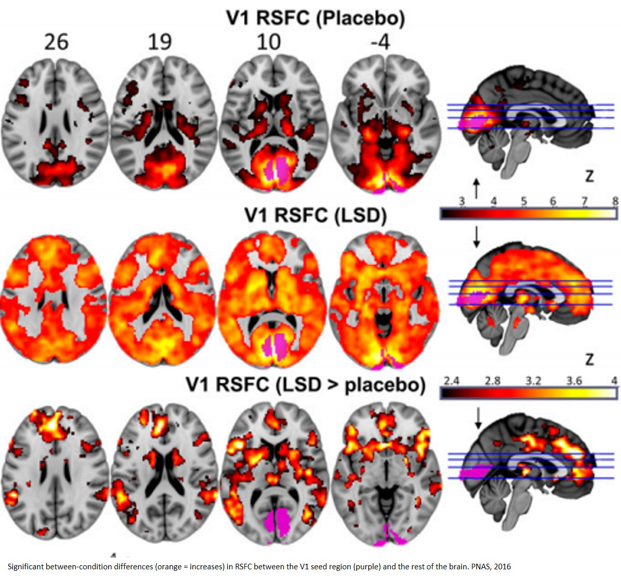 First scans show how the LSD drug affects the brain