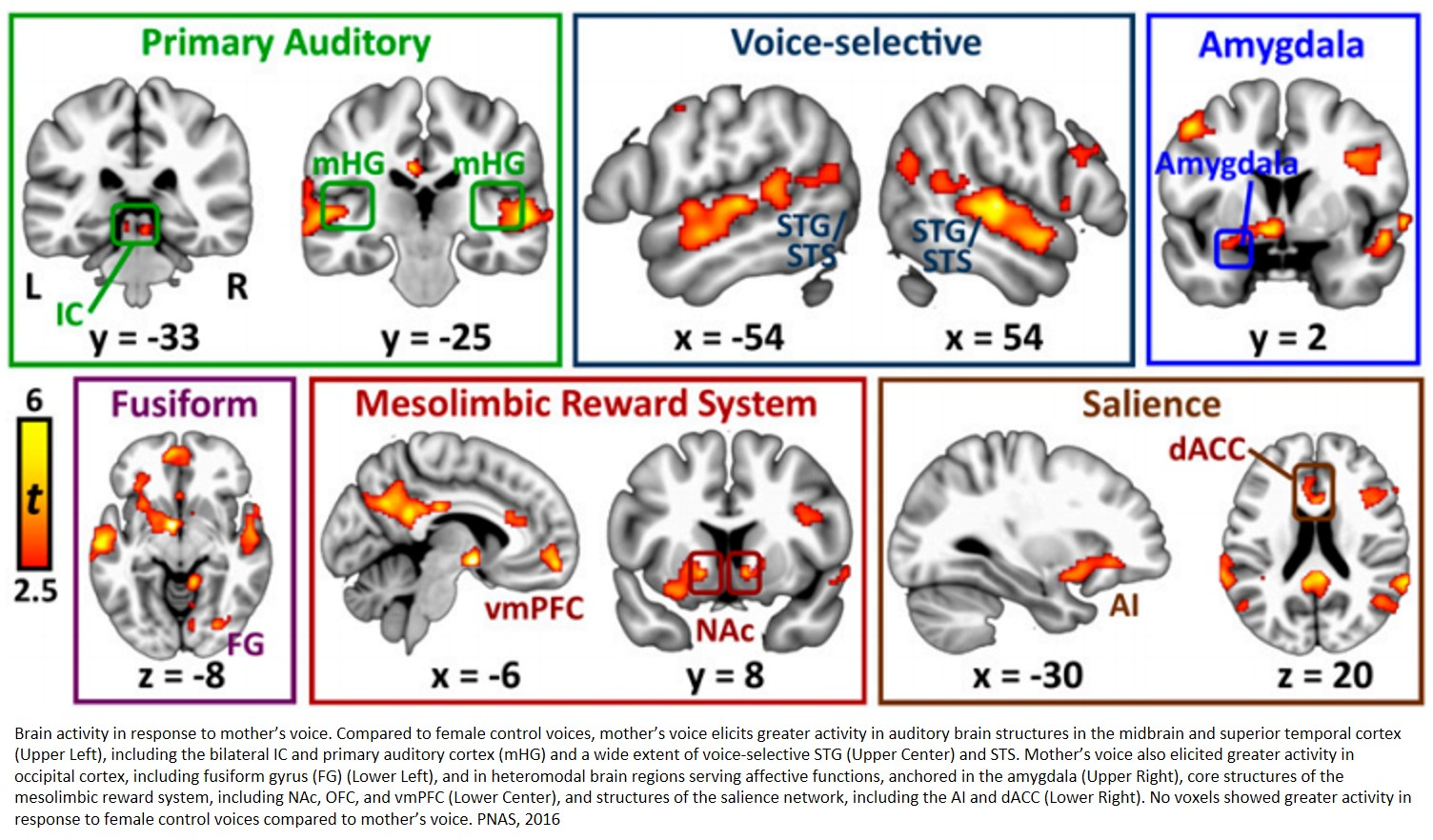 Mom's voice activates many different regions in children's brains