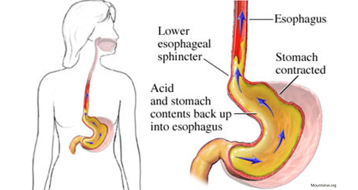 Surprising mechanism of acid reflux damage