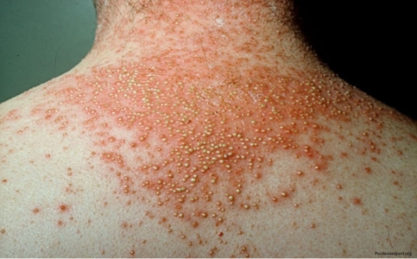 New drug clears psoriasis in clinical trials
