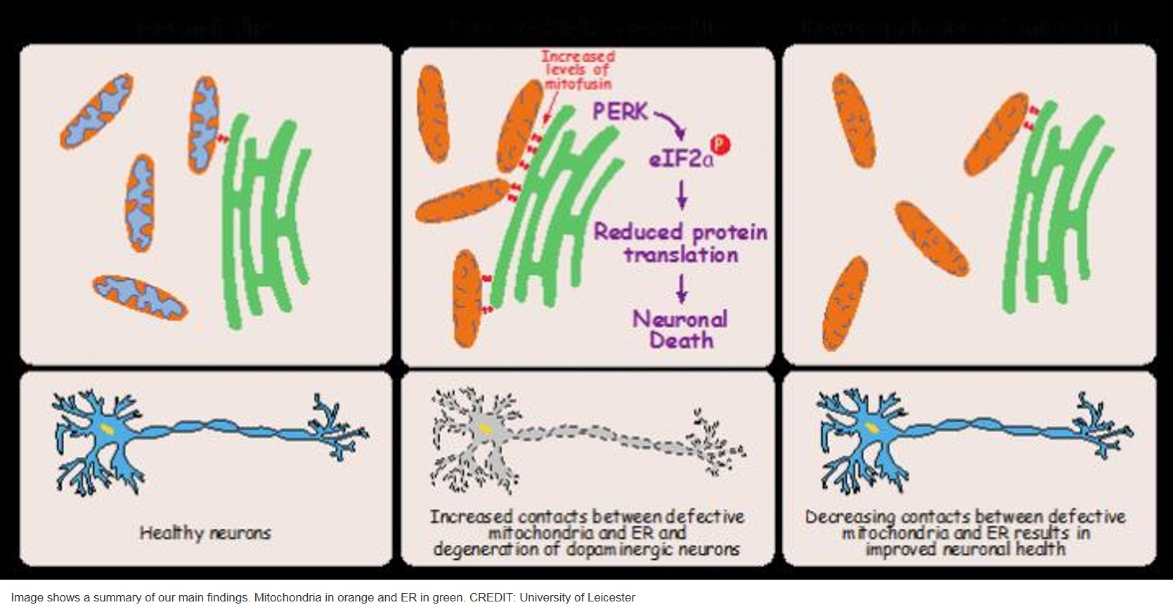 New insight into Parkinson's disease!