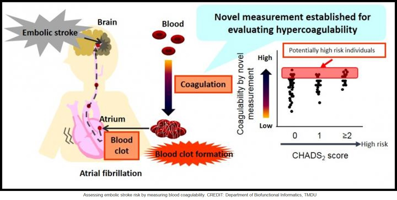 Blood coagulation detector may help in monitoring stroke risk