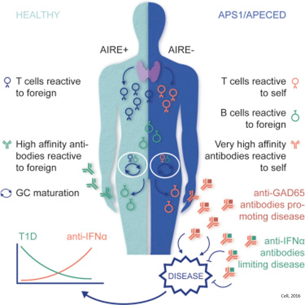 Antibodies in patients with rare disorder may have role preventing type 1 diabetes