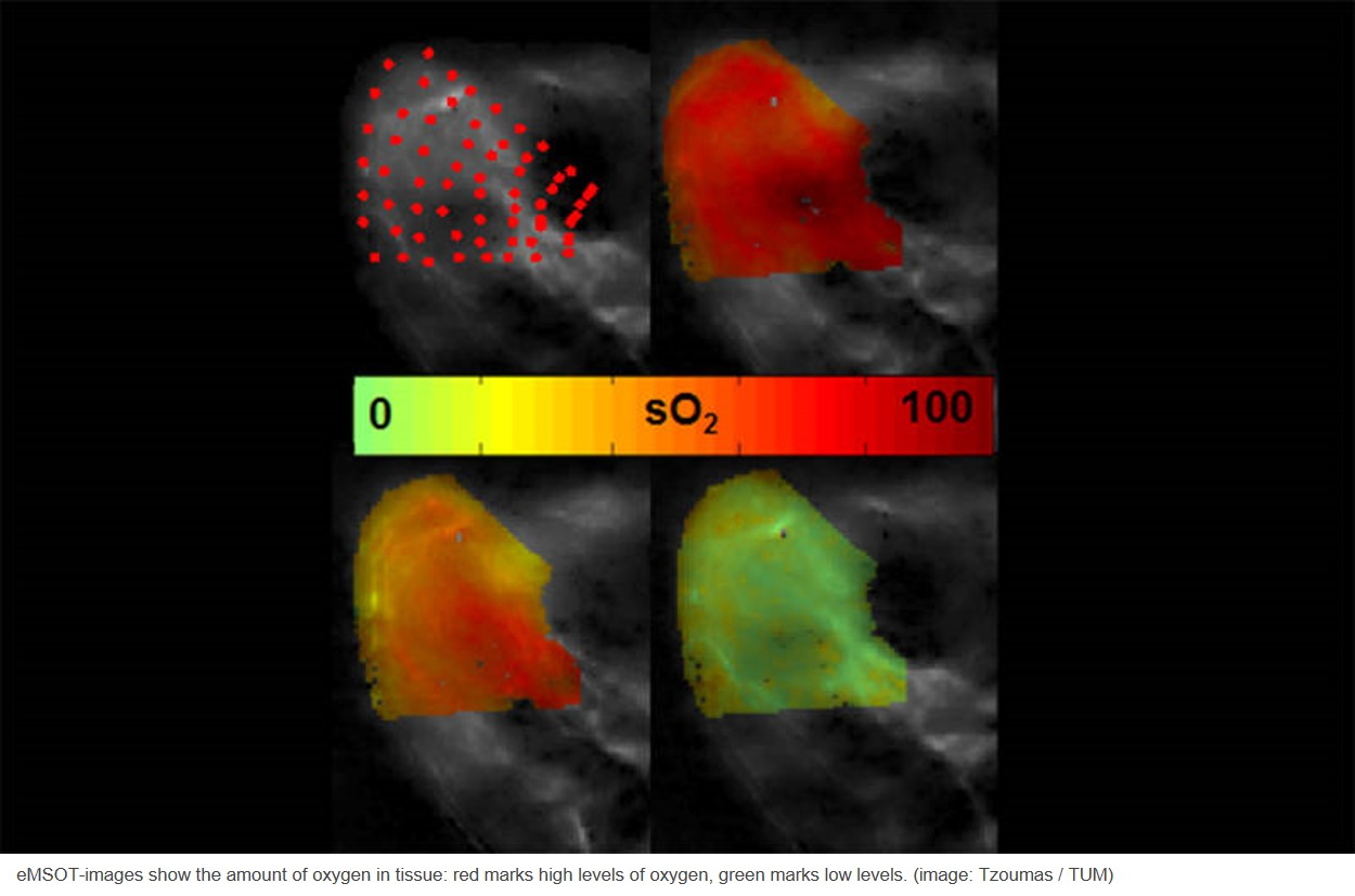 New noninvasive imaging method for showing oxygen in tissue