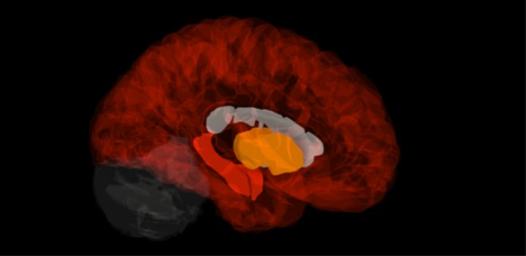 Gene signature in healthy brains pinpoints the origins of Alzheimer's disease