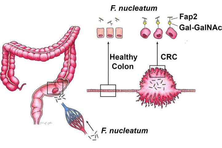 How mouth microbes may worsen colorectal cancer