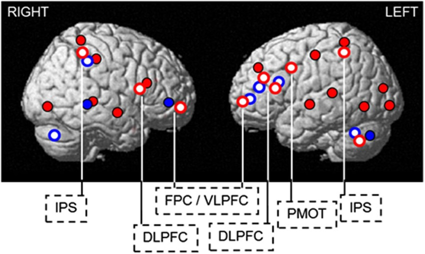 Variable response to sleep loss by different brain regions