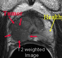 Novel MRI technique distinguishes healthy prostate tissue from cancer using zinc