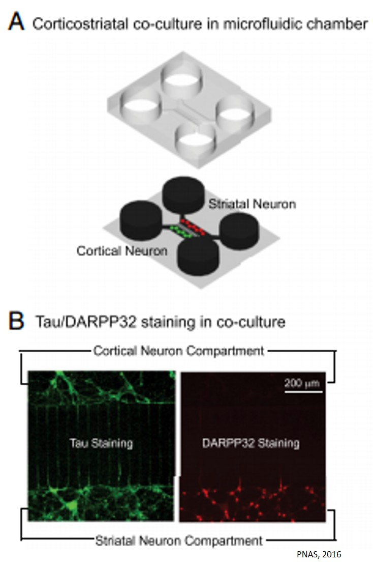 Protein subunit found to rescue afflicted neurons in Huntington's disease