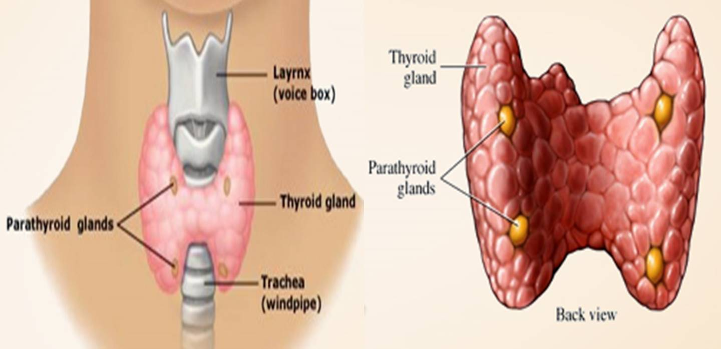 Thyroid condition for headache patients?