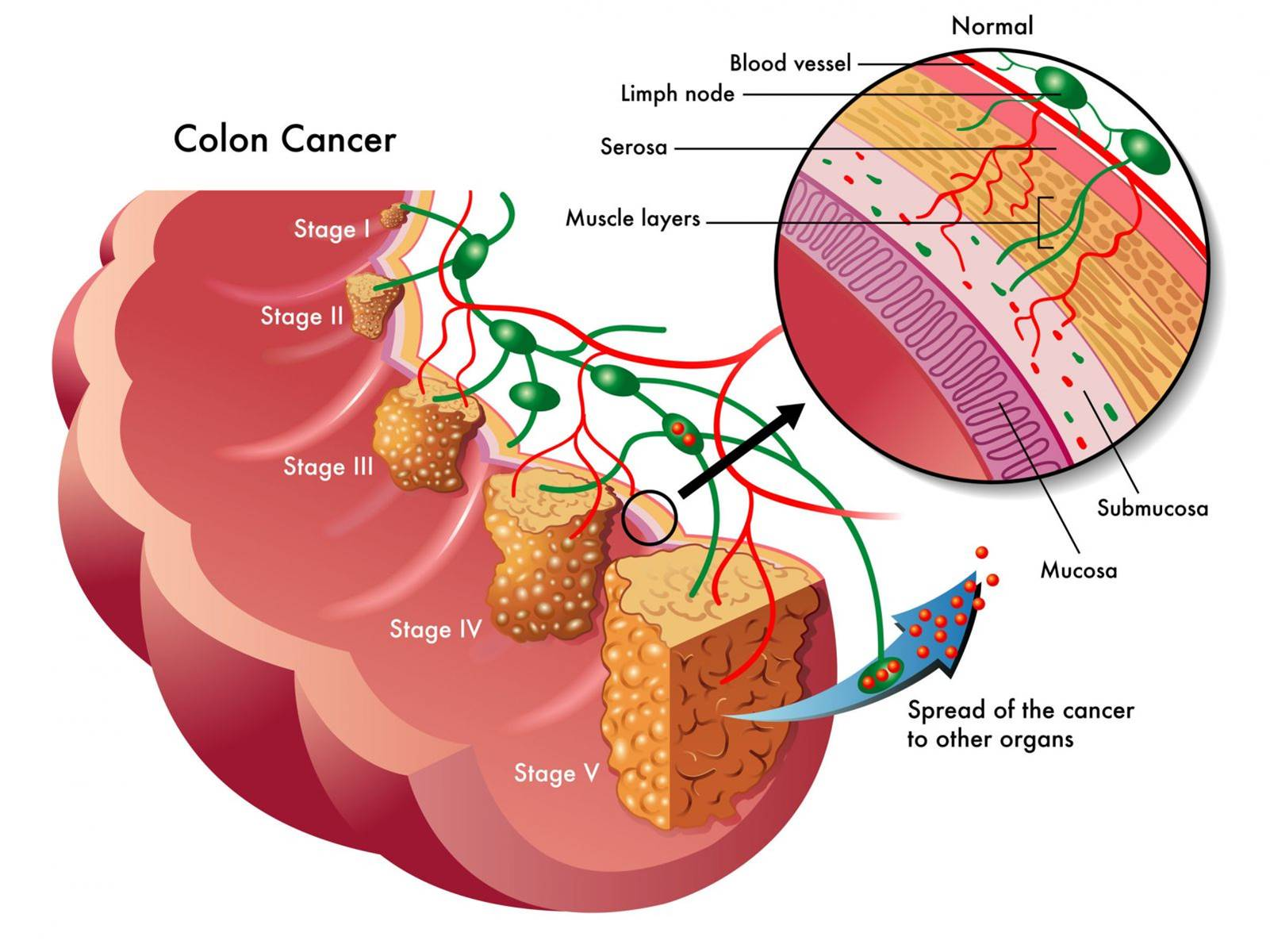 Fat in feces points to early presence of colorectal cancer