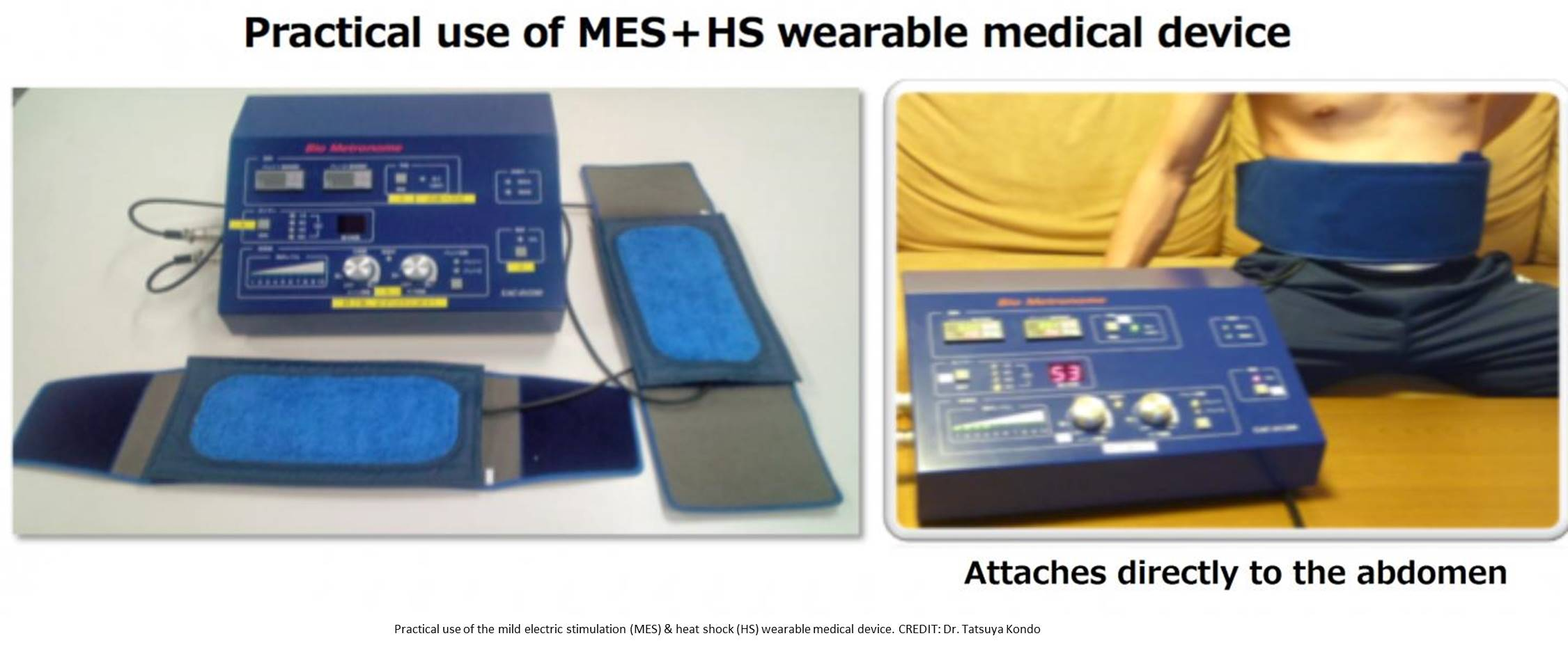 Wearable medical device for type 2 diabetes