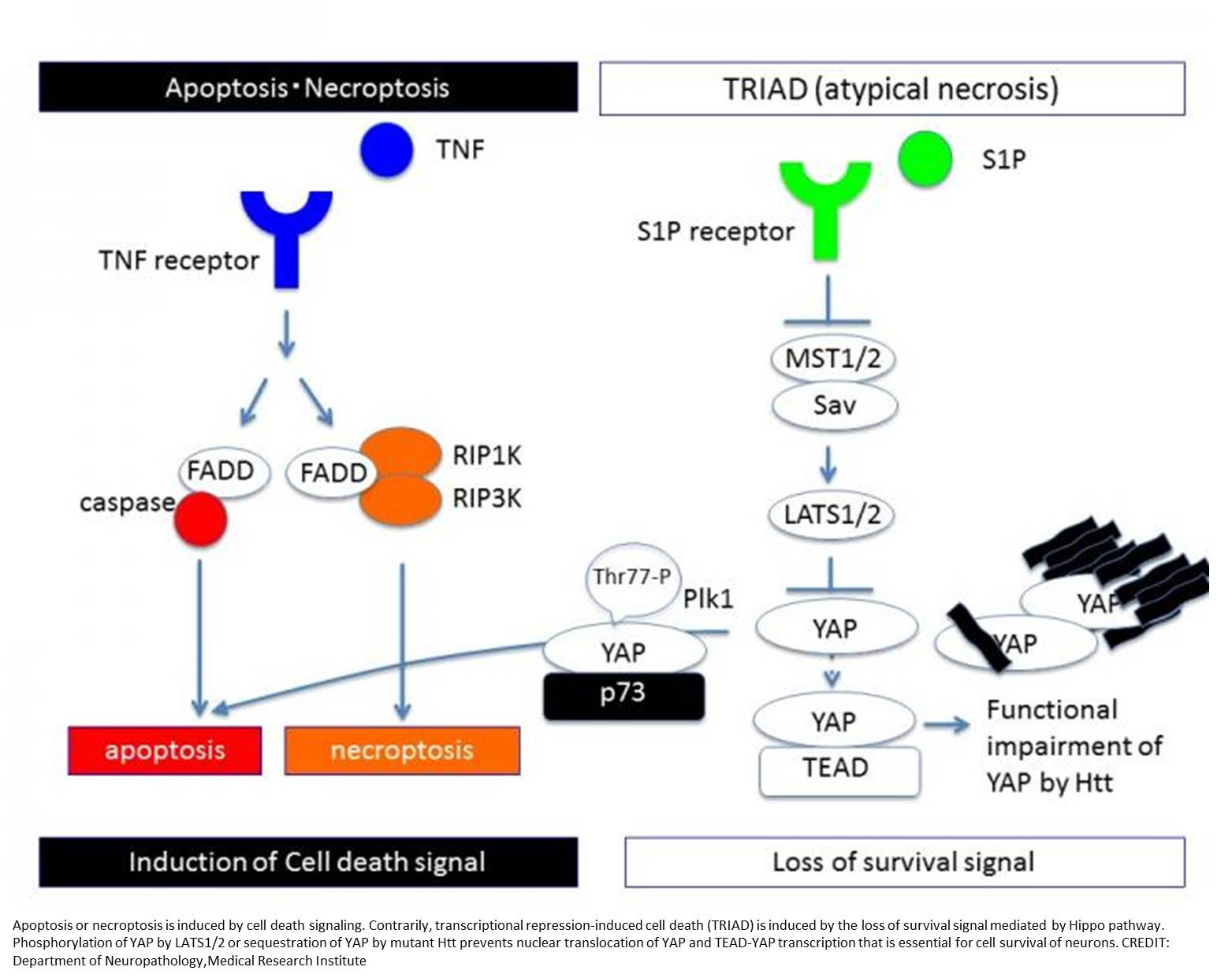 Novel type of cell death in Huntington's disease