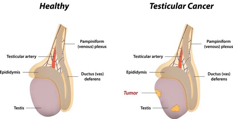 Unique genomic features in testicular cancer