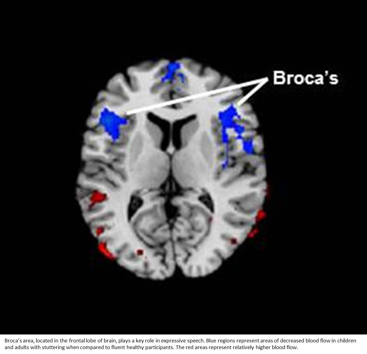 Stuttering Linked to Reduced Blood Flow in Area of Brain Associated with Language