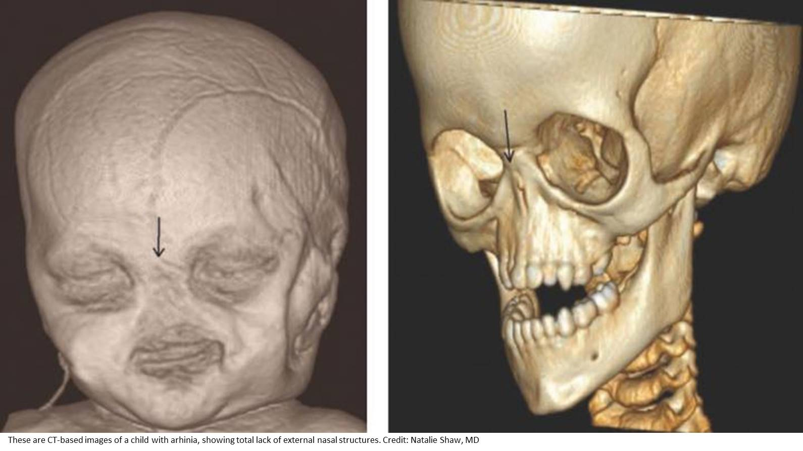 Gene mutations behind lack of a nose identified!