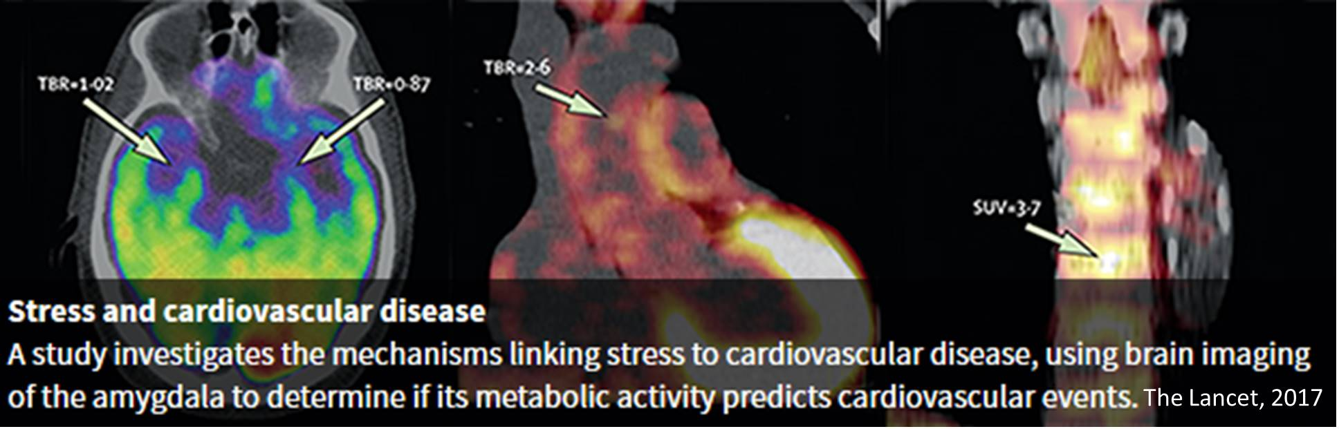 How stress may lead to cardiovascular disease & stroke